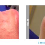 Hydrafacial acne b&a