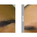 Hydrafacial hyperpigmentation b&a