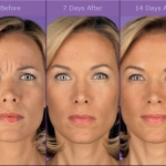 injectable b&a