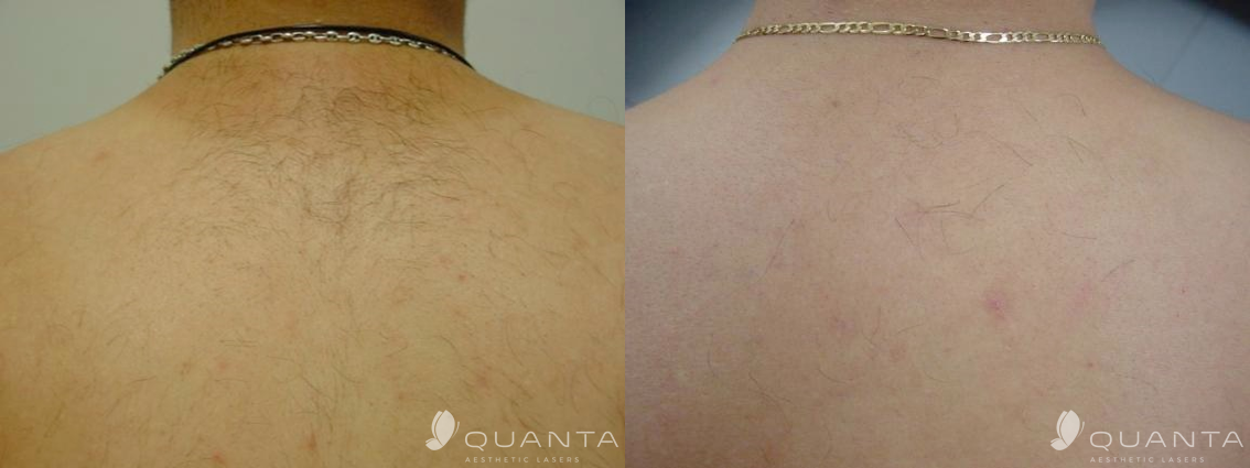 Laser Hair Removal Lafayette, CO | aRejuvenation Skin Care