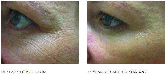 Microneedling Skin Care Lafayette Co Arejuvenation Skin