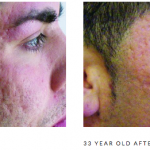 Microneedling scarring 2 b&a