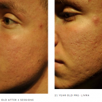 Microneedling scarring b&a