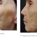 Microneedling wrinkles 2 b&a