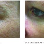 Microneedling wrinkles b&a