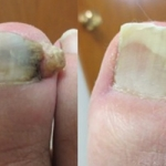 laser nail fungus 2 b&a