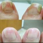 laser nail fungus b&a