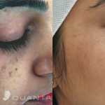 Laser pigmented lesions b&a