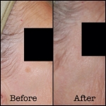 laser pigmented lesion 2 b&a