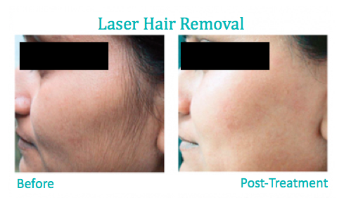 Laser Hair Removal – Benefits and Contraindication